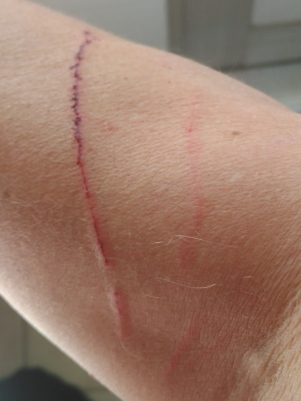 scratch from cat