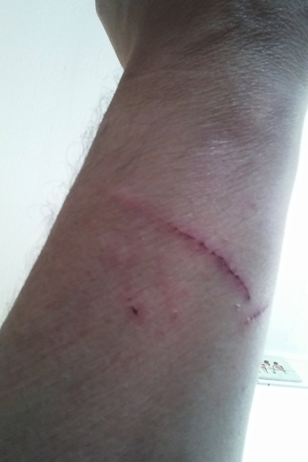 scratch from bad cat chris